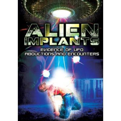 Alien Implants: Evidence of UFO abduktions (DVD) (DVD 2014)