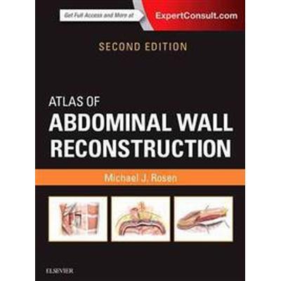 Atlas of Abdominal Wall Reconstruction (Inbunden, 2016)