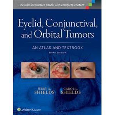 Eyelid, Conjunctival, and Orbital Tumors (Inbunden, 2015)