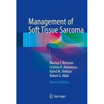 Management of Soft Tissue Sarcoma (Inbunden, 2016)