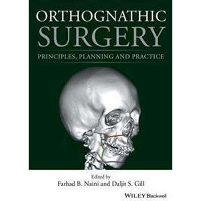 Orthognathic Surgery: Principles, Planning and Practice (Inbunden, 2017)