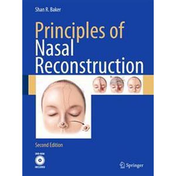 Principles of Nasal Reconstruction (Inbunden, 2010)
